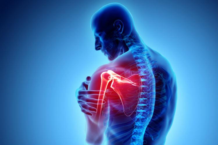 Dor muscular no ombro – Causas, prevenção e tratamento